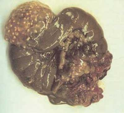 Situacion-y-enf-de-la-liebre-cisticercosis